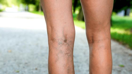 Варикоз это генетика - или болезнь прогресса?