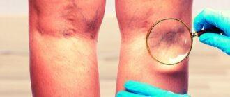 Болезни вен нижних конечностей - симптомы лечение
